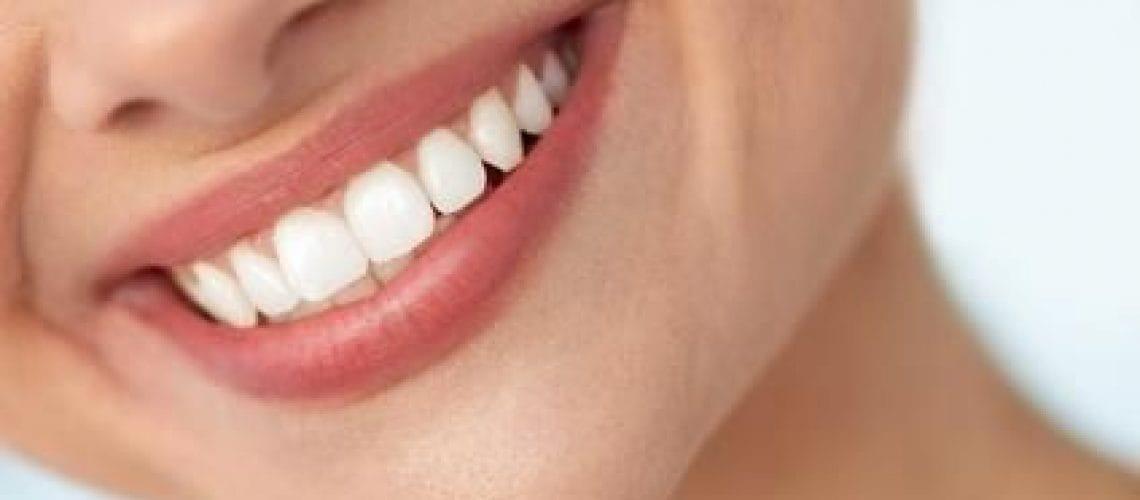 Kompozīta jeb helio pārklājums zobiem
