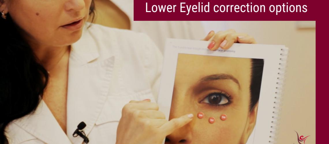 Lower Eyelid correction options