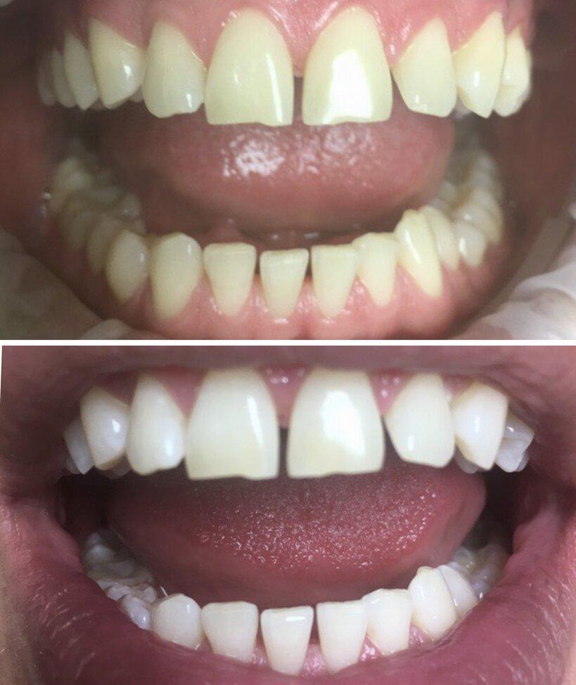 Zobu higiēna (balināšana kabinetā)